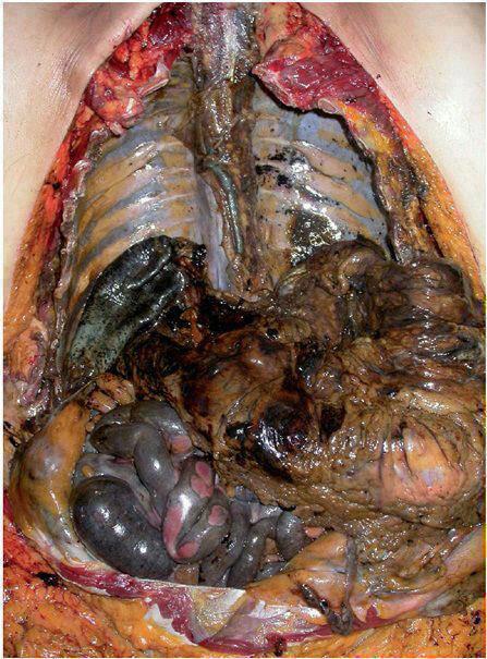 عکس ریه آدم سیگاری